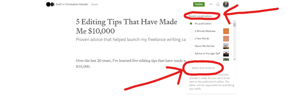 Screenshot of Adding an article to a publication on Medium